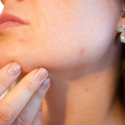 Natural Ways to Avoid Acne Breakouts