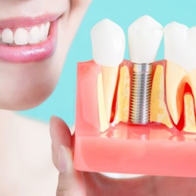 A Quick Guide to Dental Implants